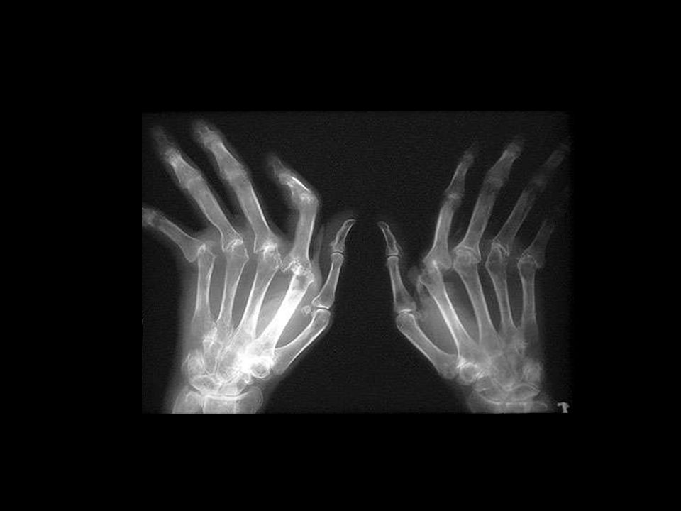Reumatoide arthritis Regionale Vasculaire Avond 19