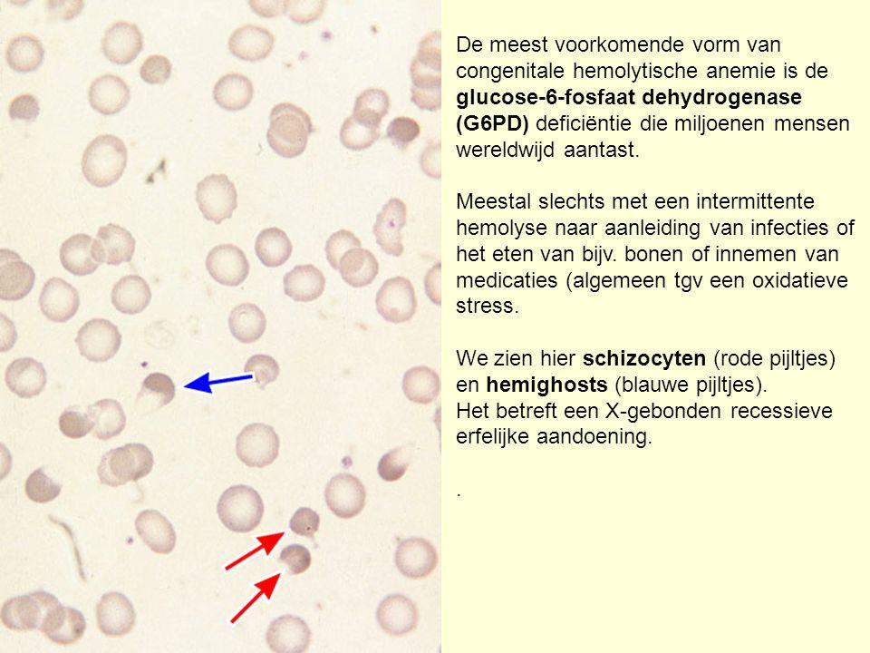 De meest voorkomende vorm van congenitale hemolytische anemie is de glucose-6-fosfaat dehydrogenase (G6PD) deficiëntie die miljoenen mensen wereldwijd aantast.