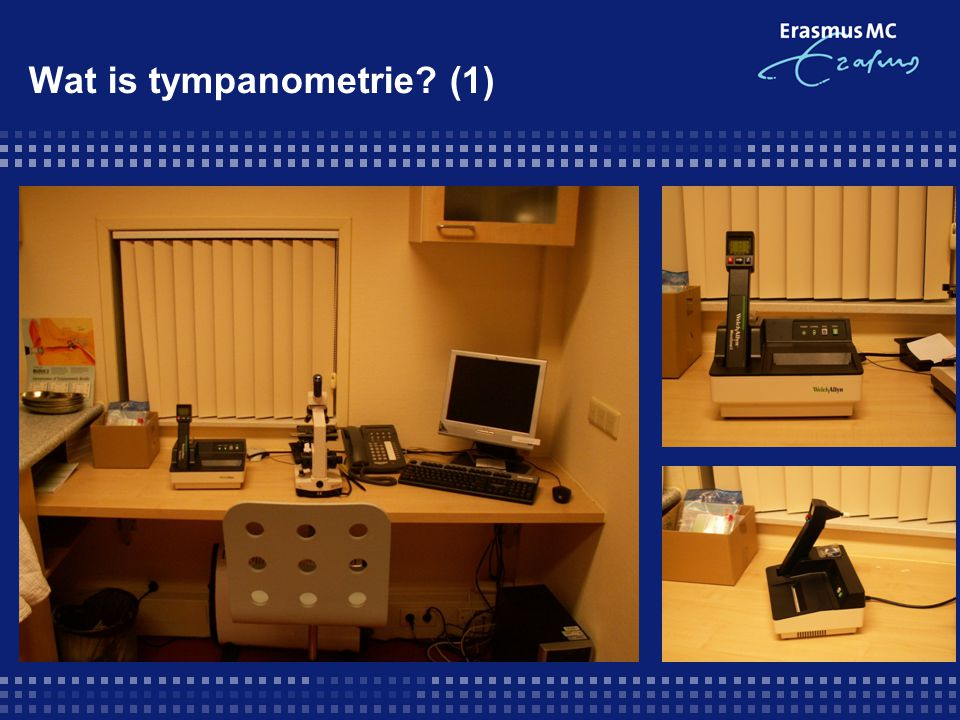 Wat is tympanometrie (1)