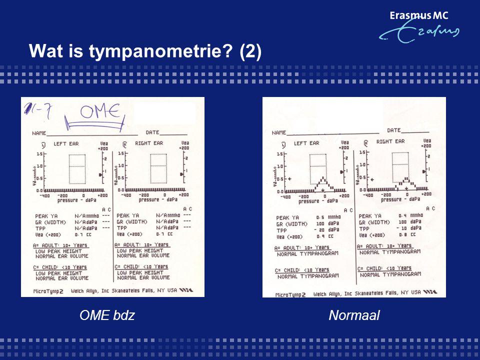 Wat is tympanometrie (2)