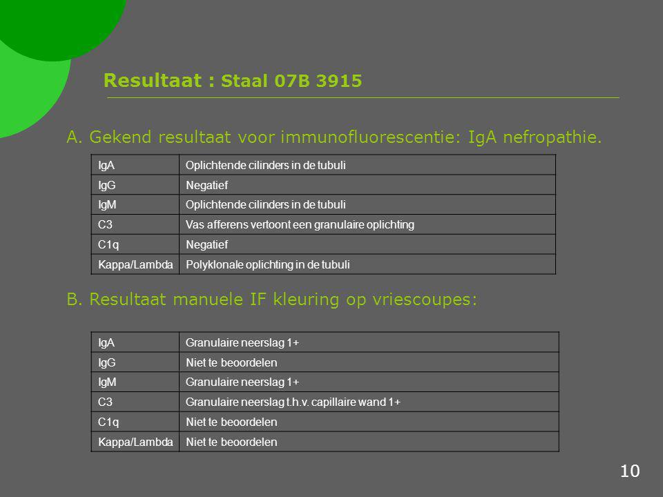 Resultaat : Staal 07B 3915 A. Gekend resultaat voor immunofluorescentie: IgA nefropathie. IgA. Oplichtende cilinders in de tubuli.