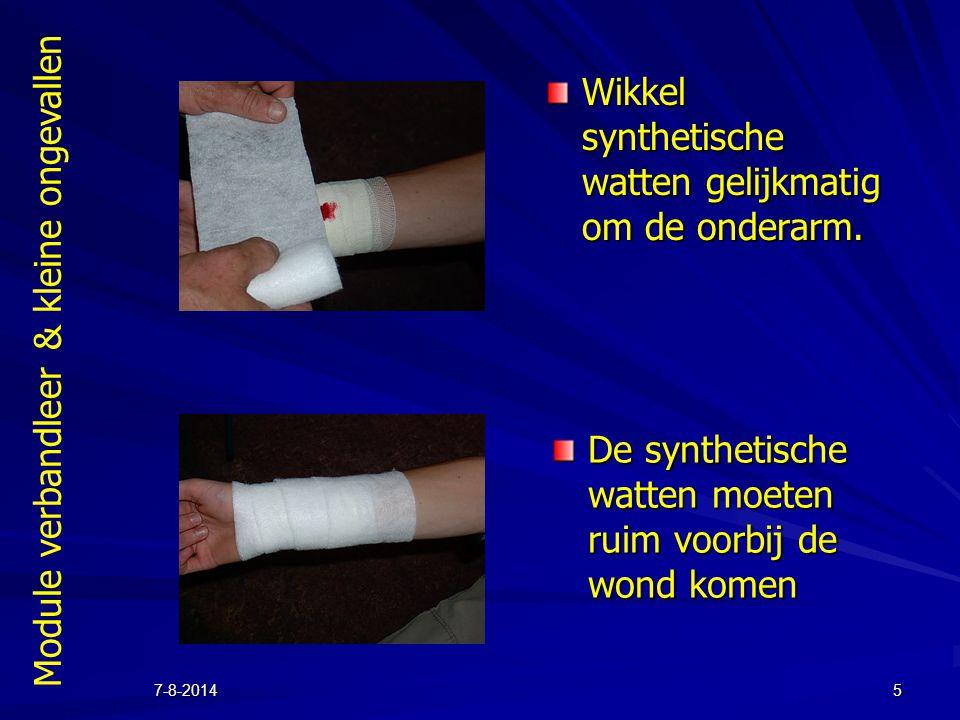 Wikkel synthetische watten gelijkmatig om de onderarm.