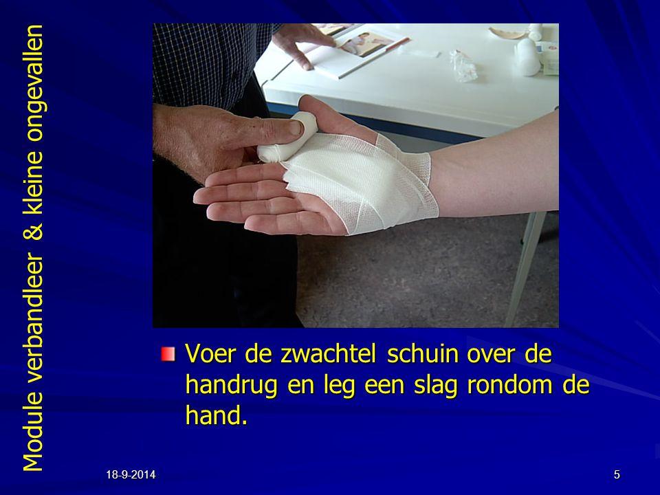 Voer de zwachtel schuin over de handrug en leg een slag rondom de hand.