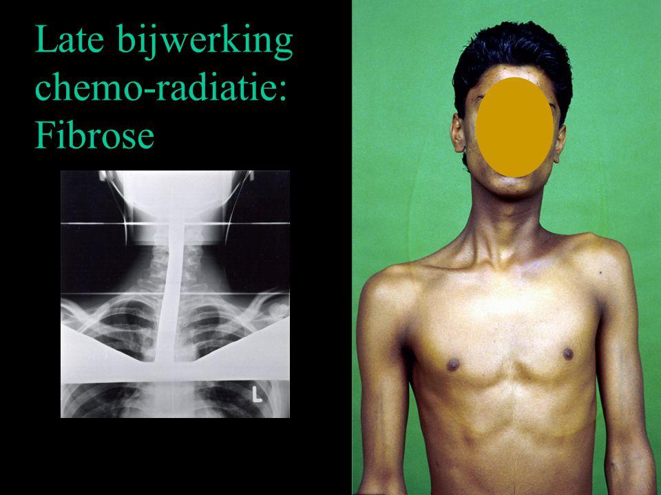Late bijwerking chemo-radiatie: Fibrose