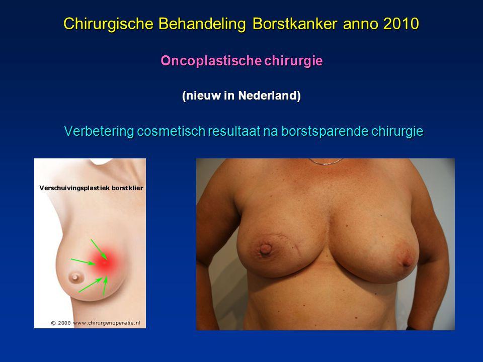Chirurgische Behandeling Borstkanker anno 2010 Oncoplastische chirurgie (nieuw in Nederland)