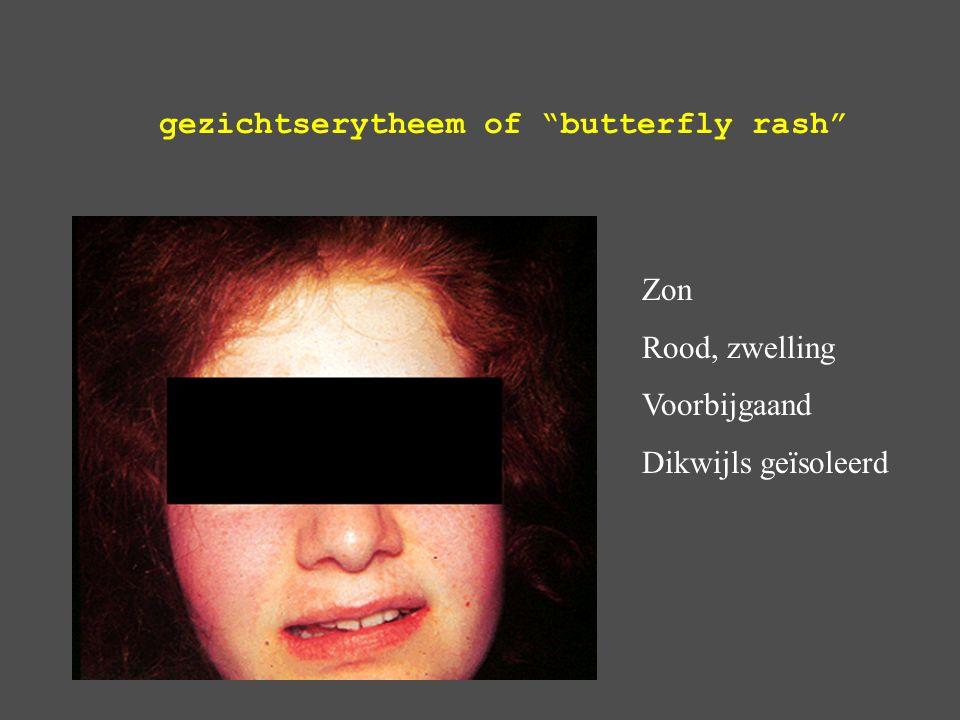gezichtserytheem of butterfly rash