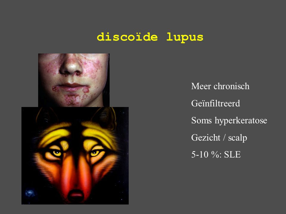 discoïde lupus Meer chronisch Geïnfiltreerd Soms hyperkeratose
