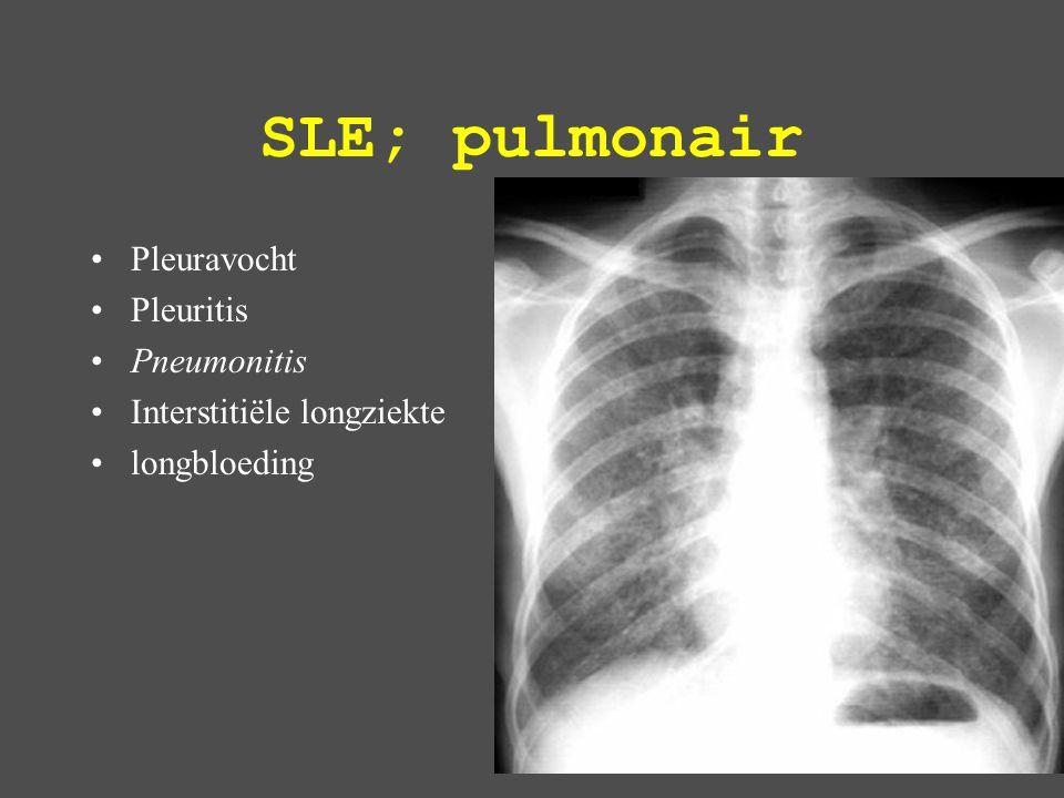 SLE; pulmonair Pleuravocht Pleuritis Pneumonitis
