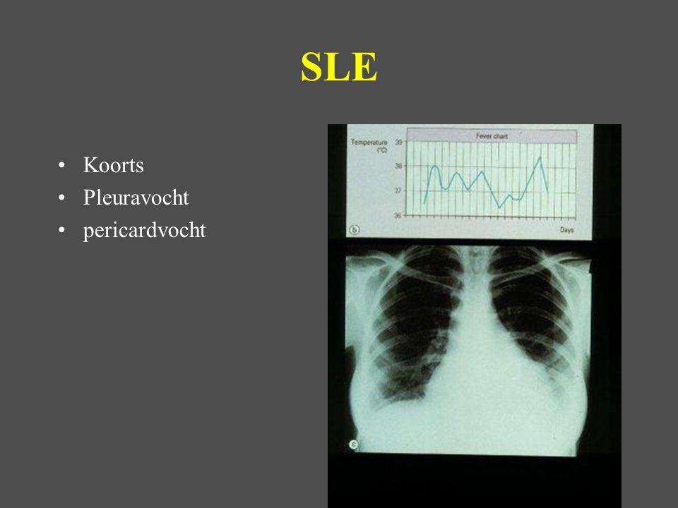 SLE Koorts Pleuravocht pericardvocht Ulcus in duodenum