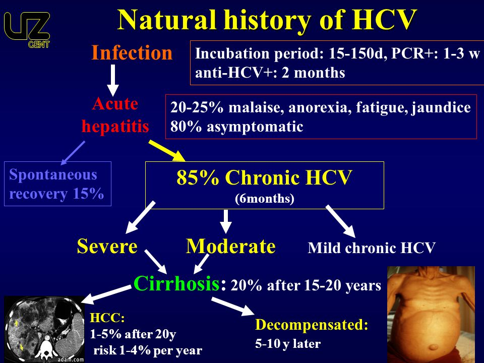 Natural history of HCV Infection 85% Chronic HCV (6months)