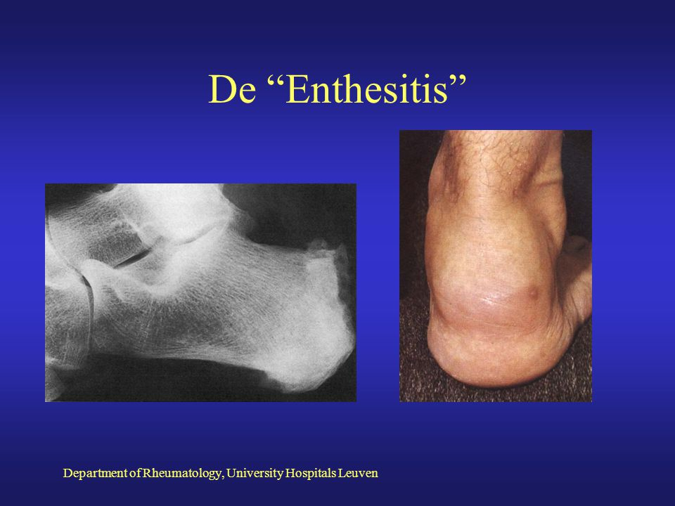 De Enthesitis Department of Rheumatology, University Hospitals Leuven