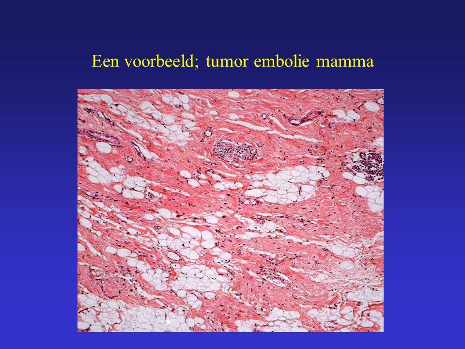 Een voorbeeld; tumor embolie mamma