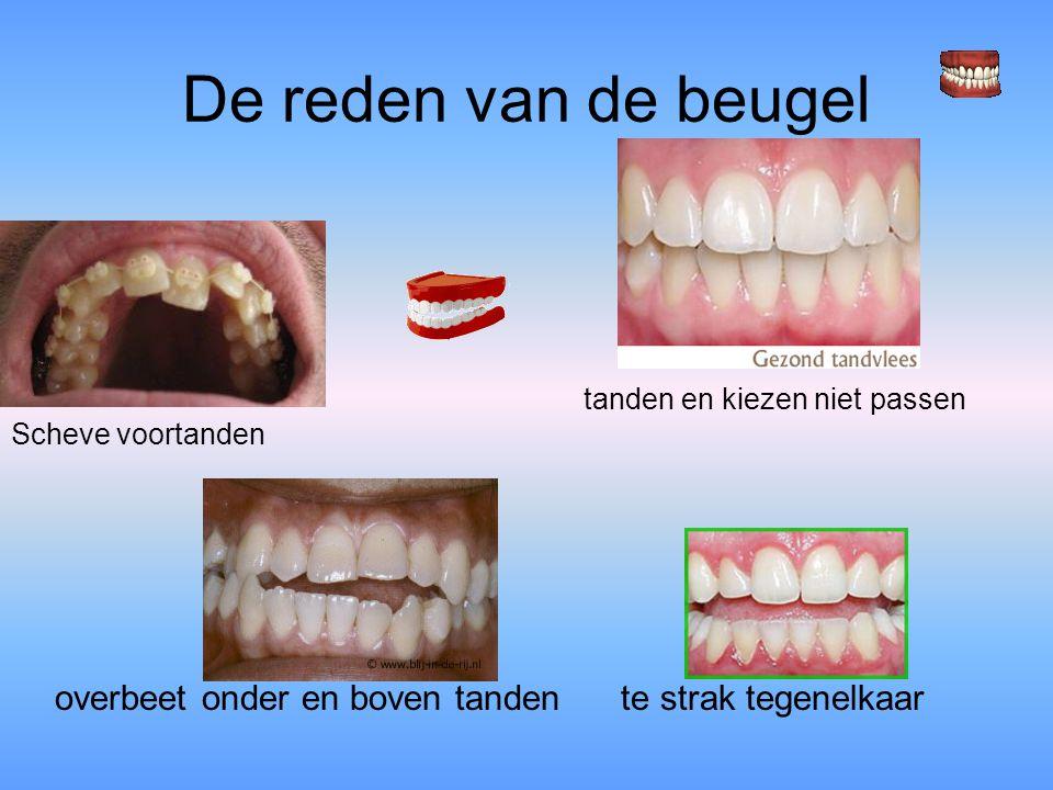 De reden van de beugel Scheve voortanden tanden en kiezen niet passen
