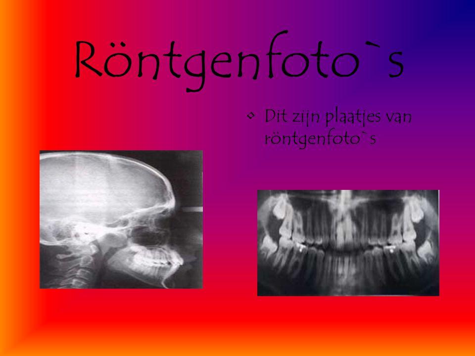 Röntgenfoto`s Dit zijn plaatjes van röntgenfoto`s