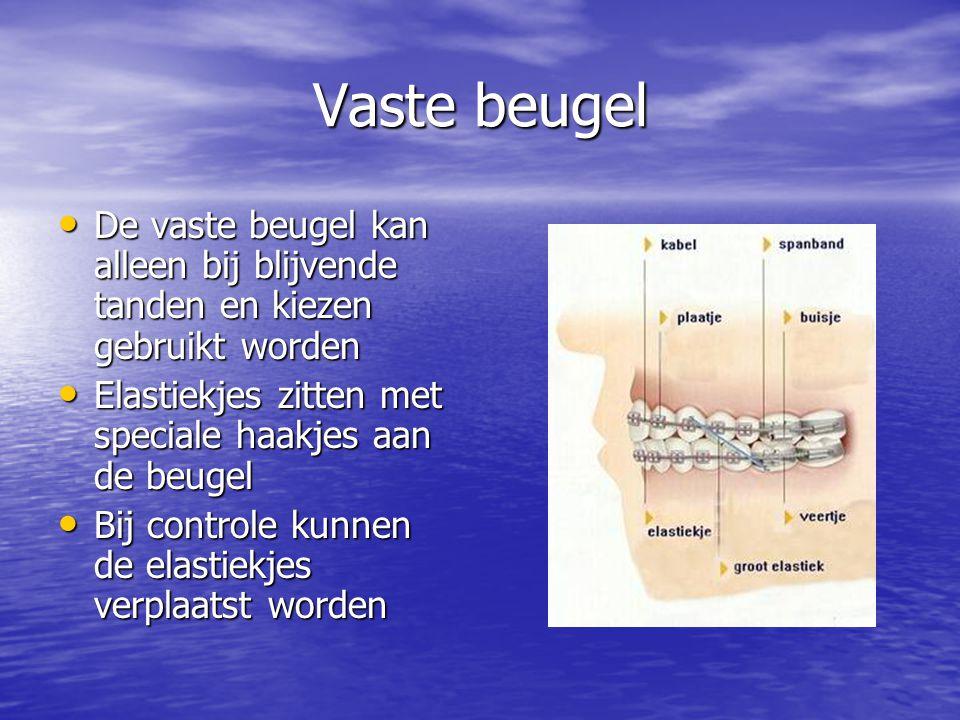 Vaste beugel De vaste beugel kan alleen bij blijvende tanden en kiezen gebruikt worden. Elastiekjes zitten met speciale haakjes aan de beugel.