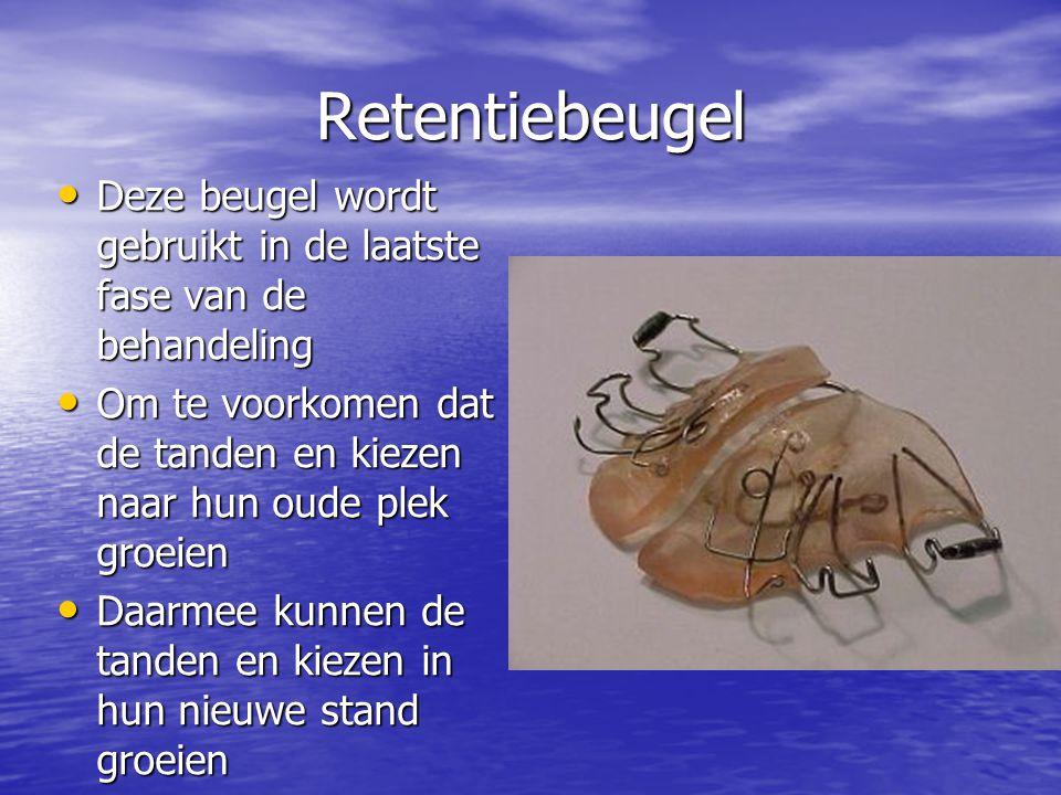 Retentiebeugel Deze beugel wordt gebruikt in de laatste fase van de behandeling. Om te voorkomen dat de tanden en kiezen naar hun oude plek groeien.