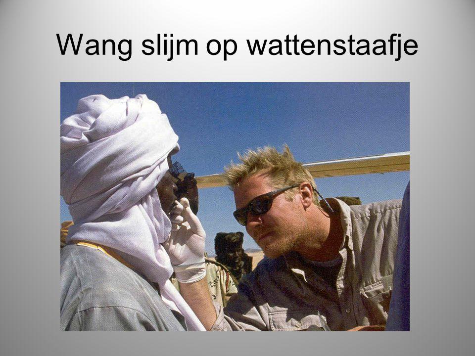Wang slijm op wattenstaafje