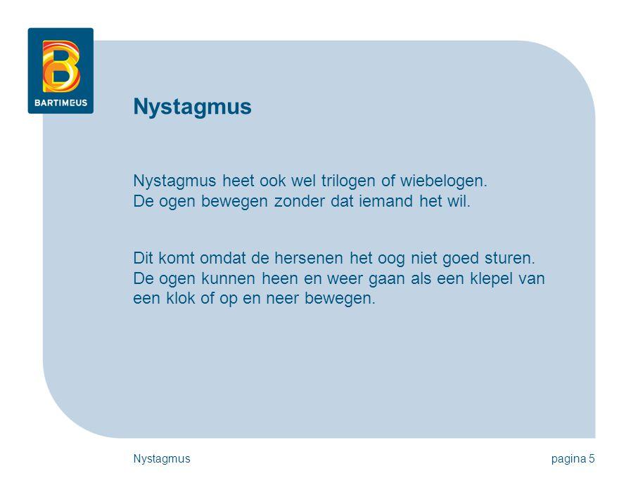 Nystagmus Nystagmus heet ook wel trilogen of wiebelogen. De ogen bewegen zonder dat iemand het wil.