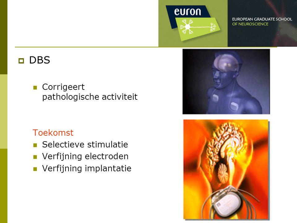 DBS Corrigeert pathologische activiteit Toekomst Selectieve stimulatie