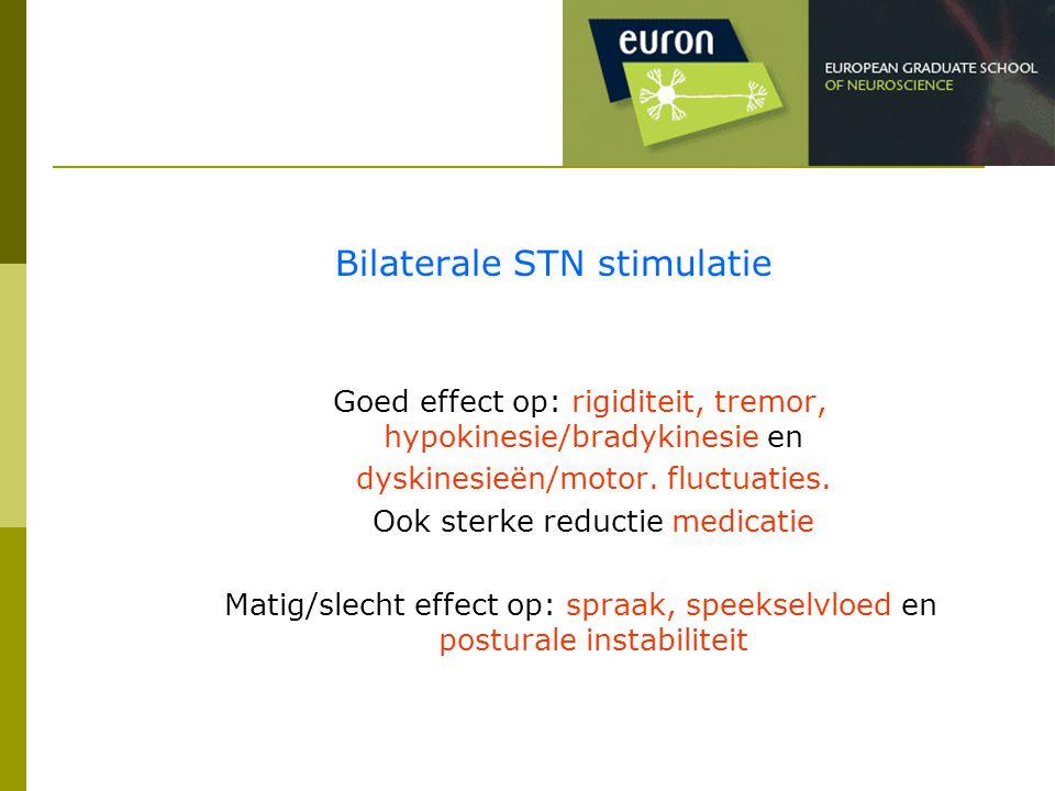 Bilaterale STN stimulatie