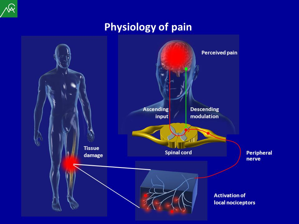 Physiology of pain Perceived pain Ascending input