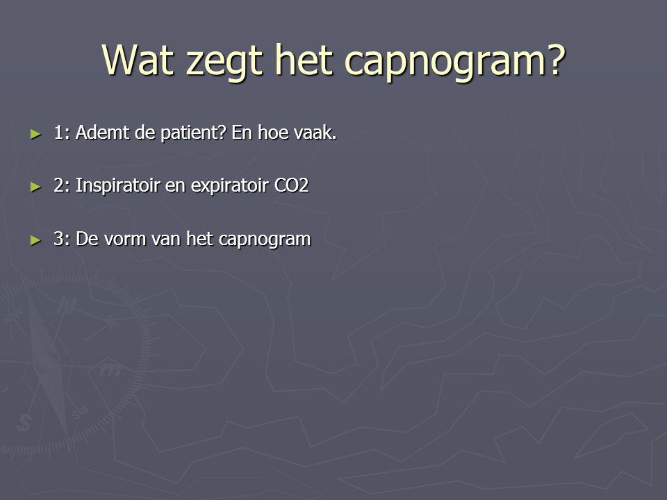 Wat zegt het capnogram 1: Ademt de patient En hoe vaak.