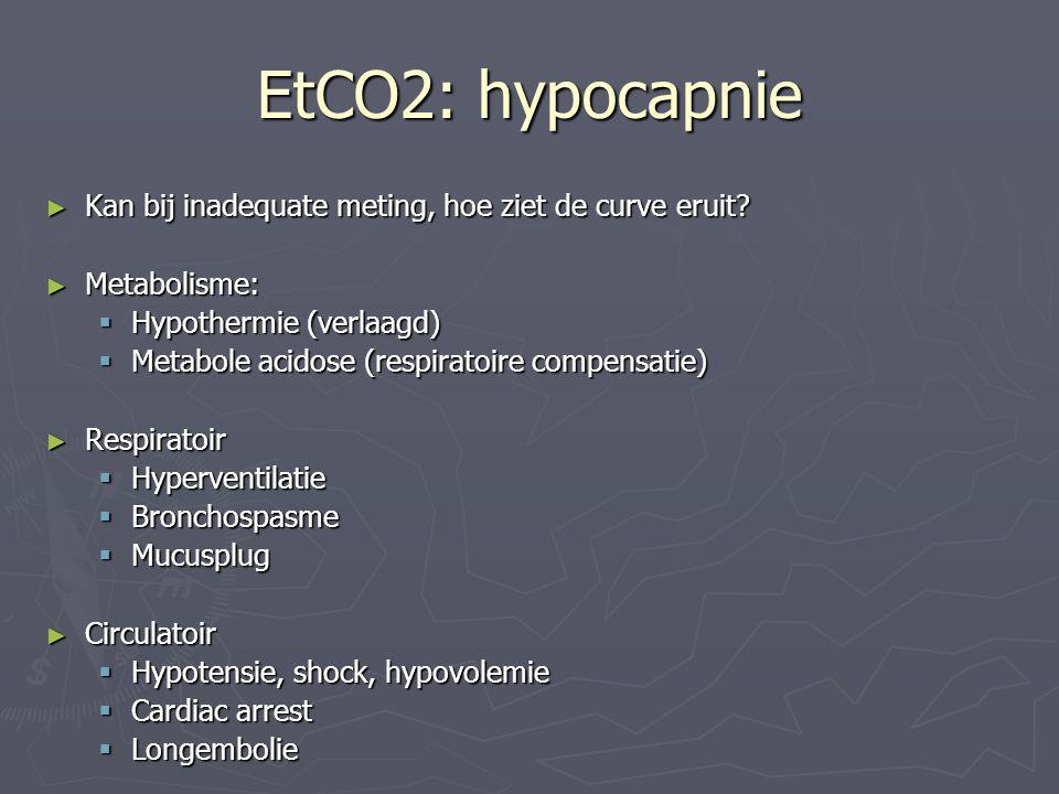 EtCO2: hypocapnie Kan bij inadequate meting, hoe ziet de curve eruit