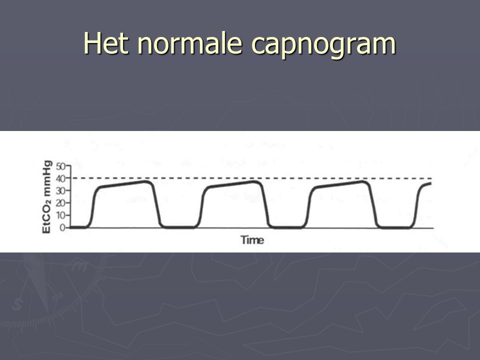 Het normale capnogram