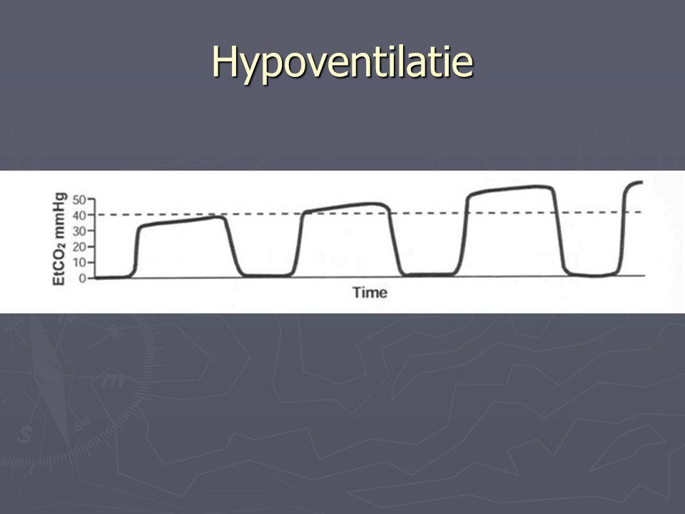 Hypoventilatie