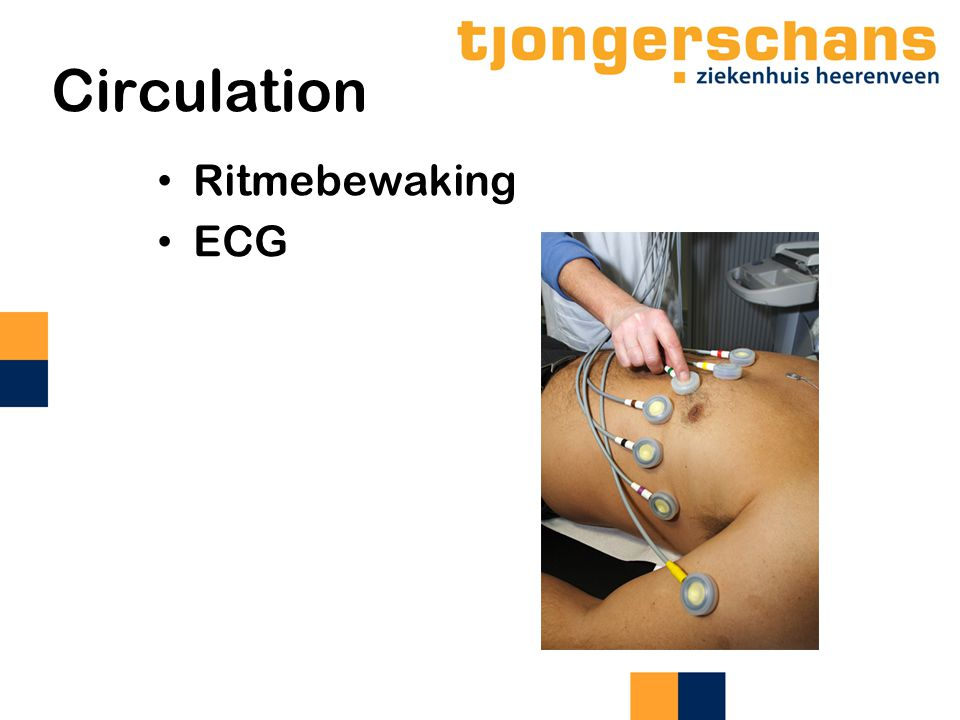 Circulation Ritmebewaking ECG