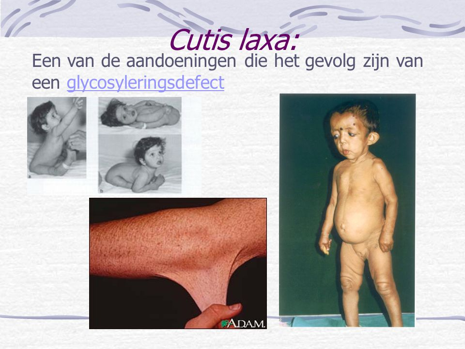 Cutis laxa: Een van de aandoeningen die het gevolg zijn van een glycosyleringsdefect