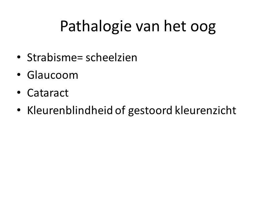 Pathalogie van het oog Strabisme= scheelzien Glaucoom Cataract
