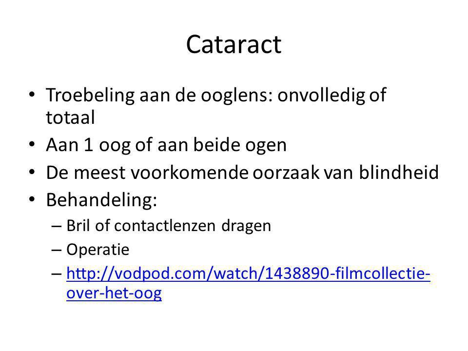 Cataract Troebeling aan de ooglens: onvolledig of totaal