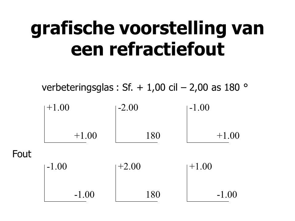 grafische voorstelling van een refractiefout