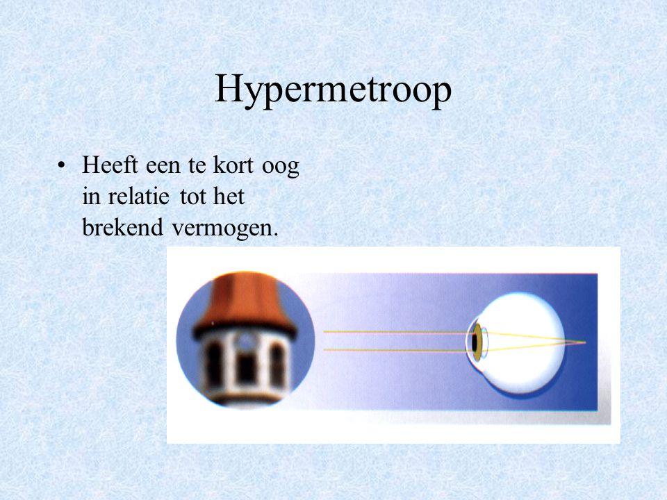 Hypermetroop Heeft een te kort oog in relatie tot het brekend vermogen.
