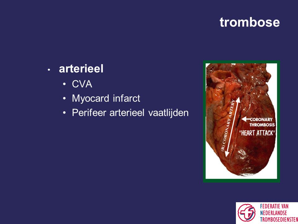 trombose arterieel CVA Myocard infarct Perifeer arterieel vaatlijden