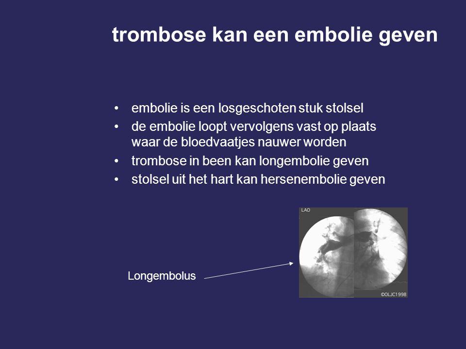trombose kan een embolie geven