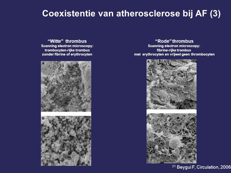 Coexistentie van atherosclerose bij AF (3)