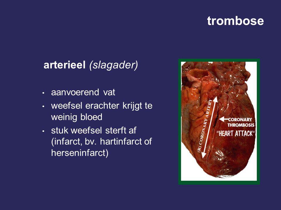 trombose arterieel (slagader) aanvoerend vat