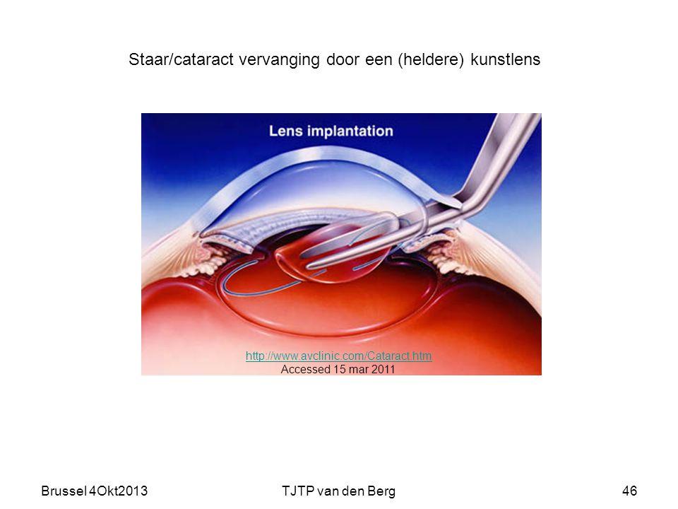 Staar/cataract vervanging door een (heldere) kunstlens