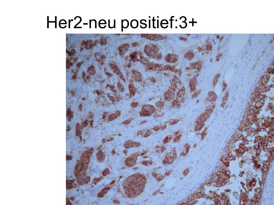 Her2-neu positief:3+