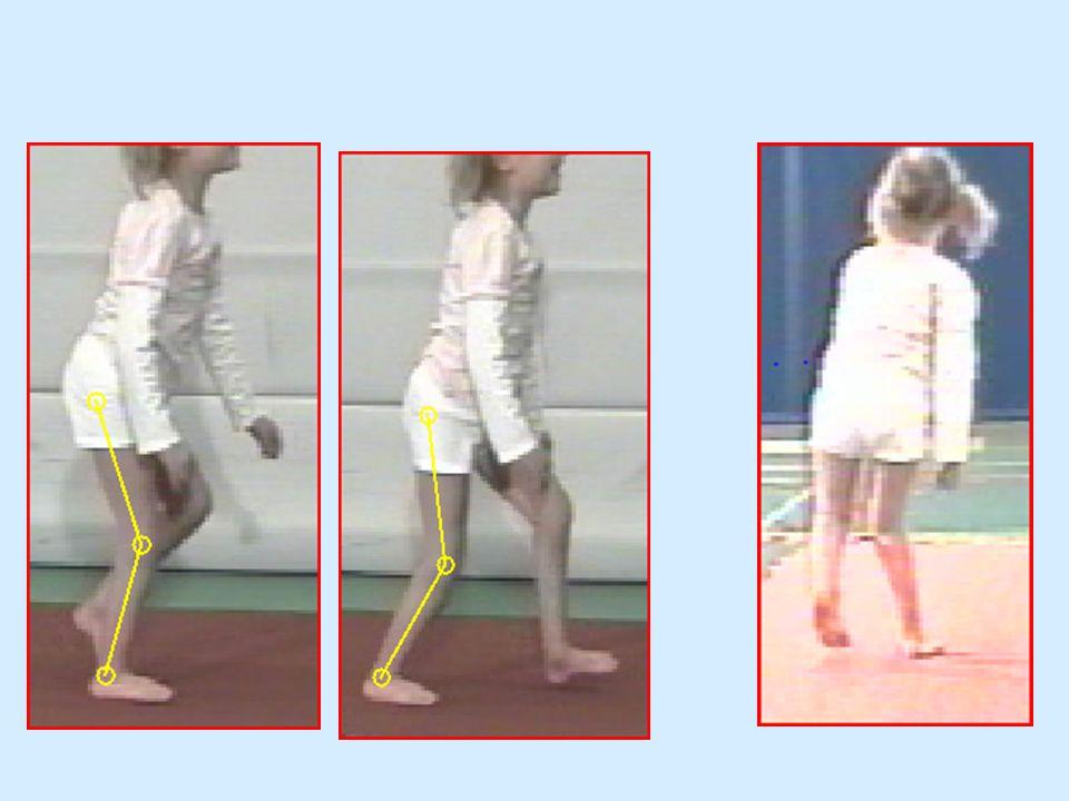 Meer spierzwakte en nemen de afwijkingen bij het lopen toe, Strekt nog minder goed op door zwakte van zowel van de kuit als de heupstrekke.r staplengte wordt nog kleiner en energie verbruik nog hoger