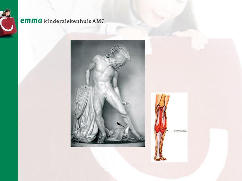 Jullie kennen vast het verhaal van de held Achilles:Achilles pees is onderdeel van de kuitspier. De oude Grieken hadden al door hoe belangrijk deze is voor het lopen. Kuitspier is de meest krachtige en belangrijke spier voor het lopen, maar helaas komen de zenuwen naar de kuit al uit de laagste deel van de ruggenmer en is deze een van de eerste spieren die slecht functioneert bij SB.