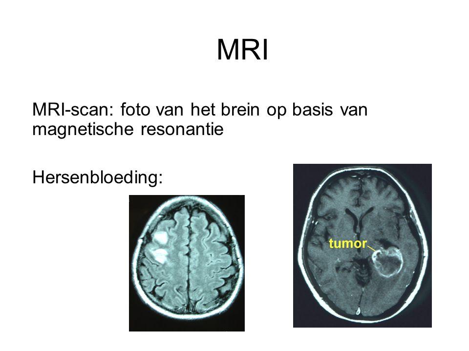 MRI MRI-scan: foto van het brein op basis van magnetische resonantie