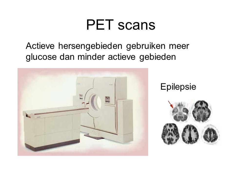 PET scans Actieve hersengebieden gebruiken meer glucose dan minder actieve gebieden Epilepsie
