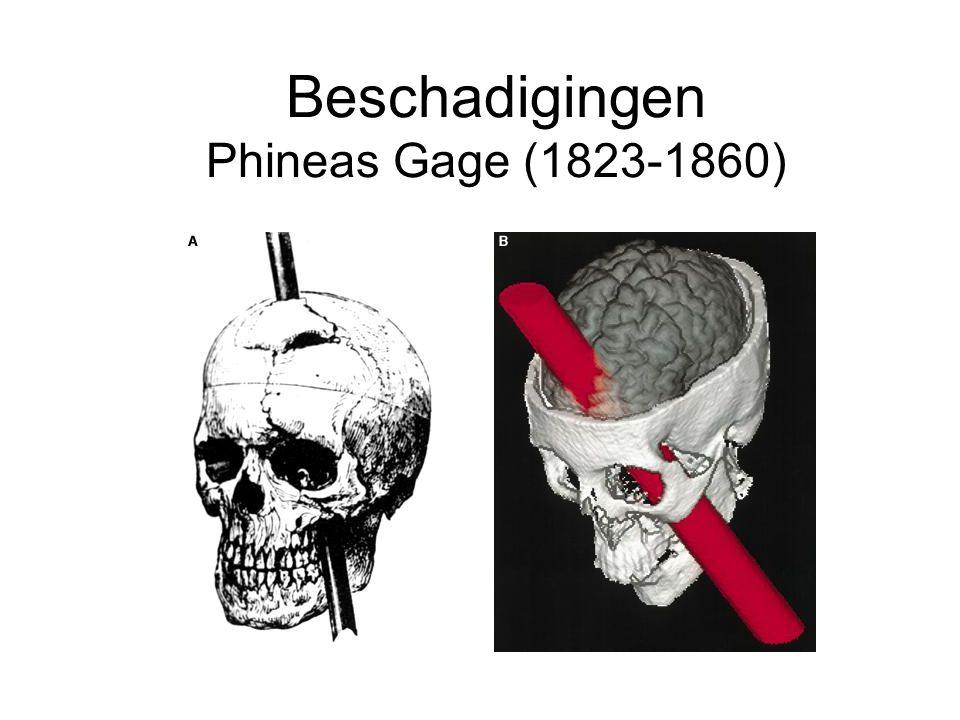 Beschadigingen Phineas Gage (1823-1860)