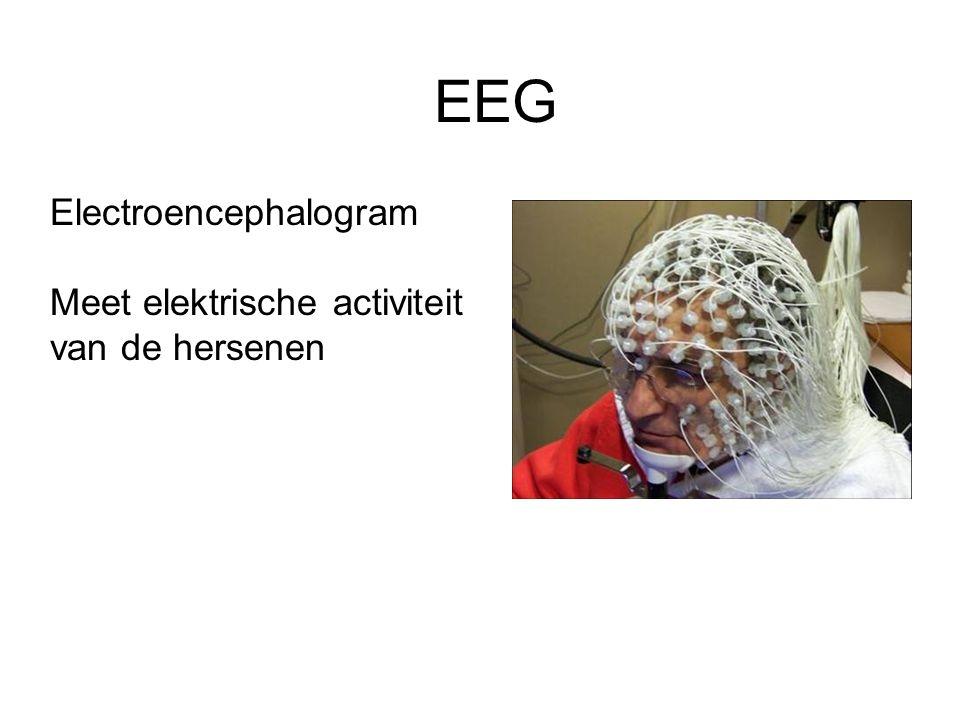 EEG Electroencephalogram Meet elektrische activiteit van de hersenen