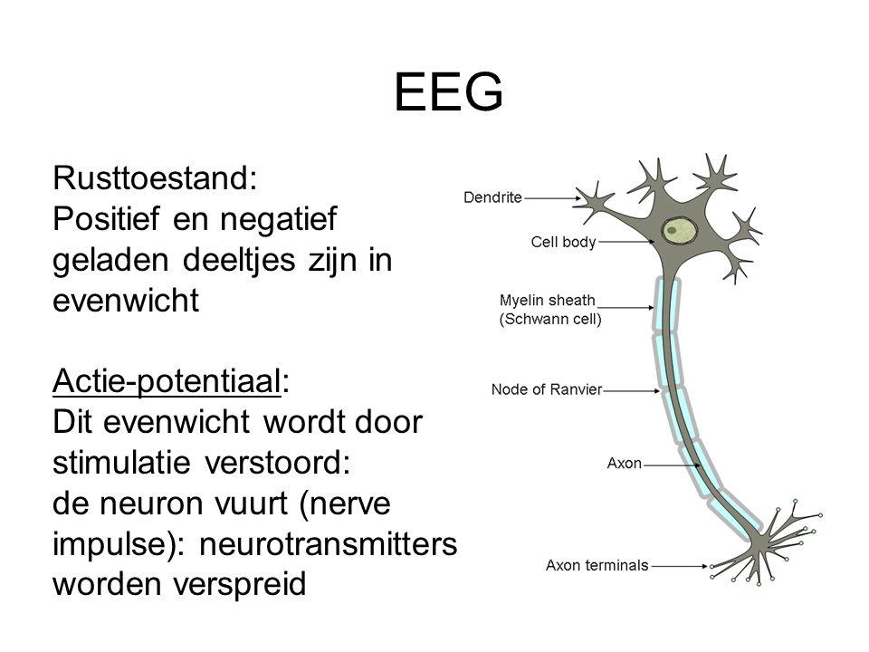 EEG Rusttoestand: Positief en negatief geladen deeltjes zijn in