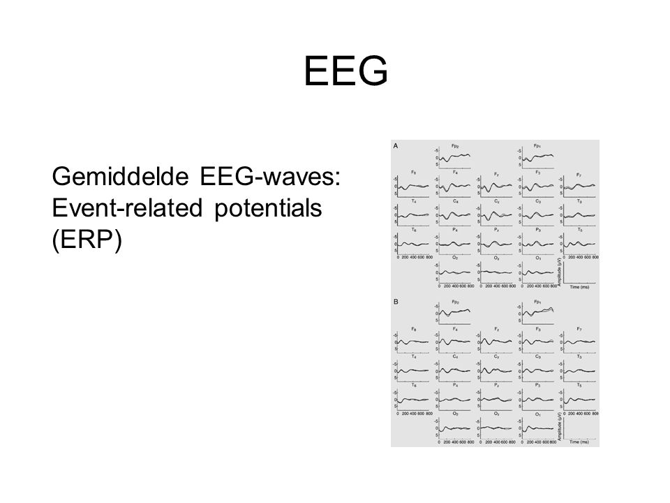 EEG Gemiddelde EEG-waves: Event-related potentials (ERP)