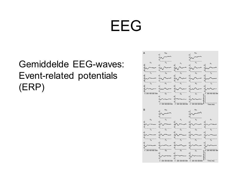 EEG Gemiddelde EEG-waves: Event-related potentials (ERP)